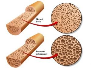 Osteoporosis bone density testing